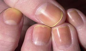 What do your Nails Say about your Health
