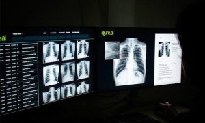 Tuberculosis: A disease Lurking in the Dark