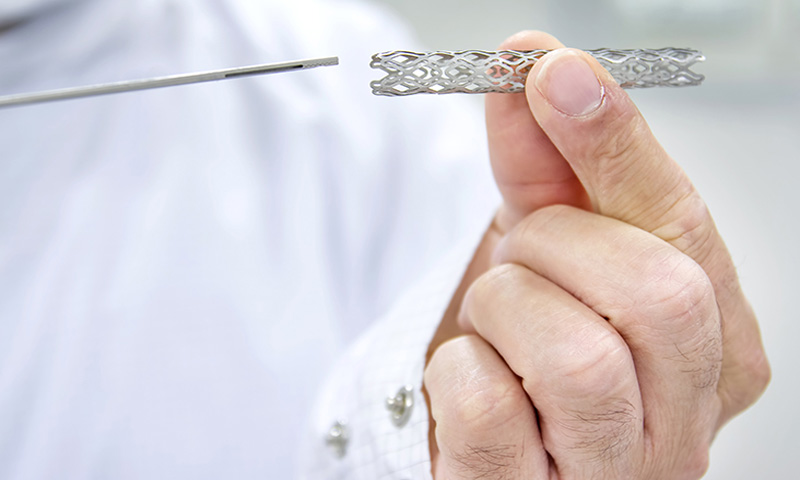 Newest Development in Surgeries Involving Stents to Change Everything